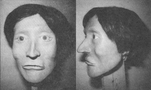 Facial Reconstruction of Unidentified Homicide Victim